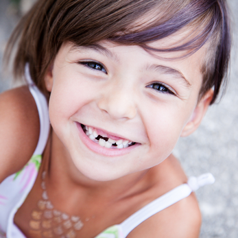 Zweite Zähne